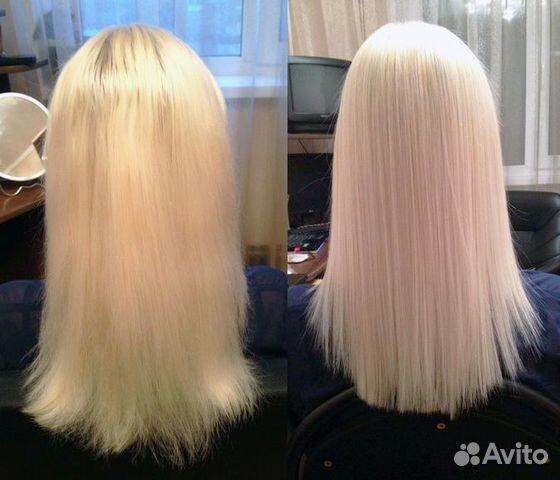 Сильное выпадение волос в подростковом возрасте