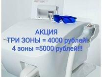 Лазерная Эпиляция — Предложение услуг в Москве